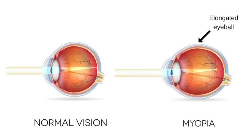 Normal eye versus myopic eye
